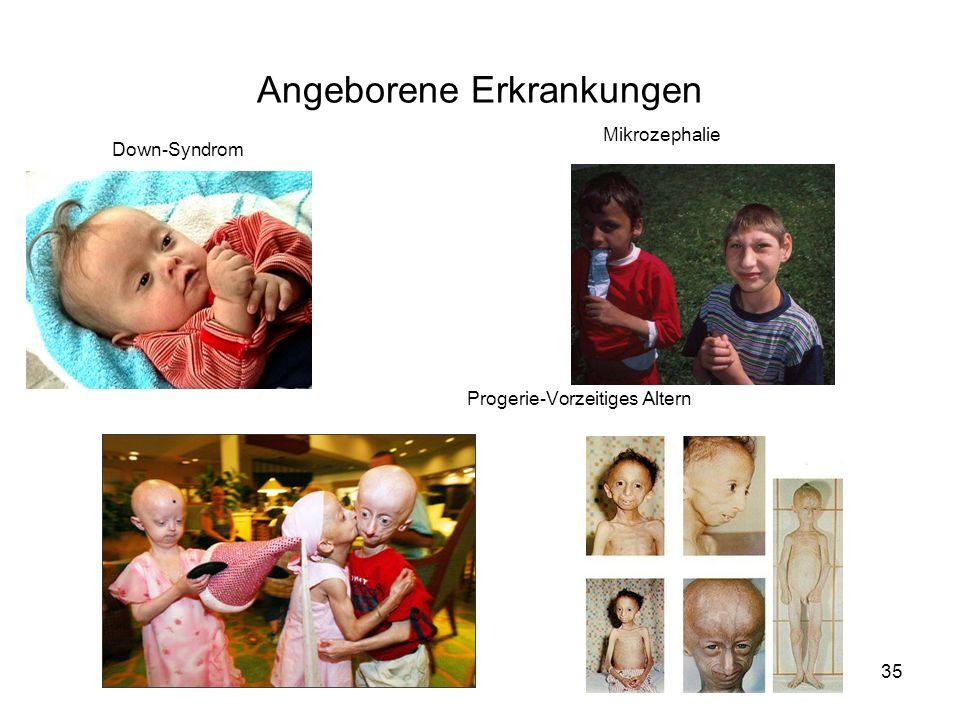 35 Down-Syndrom Mikrozephalie Progerie-Vorzeitiges Altern Angeborene Erkrankungen