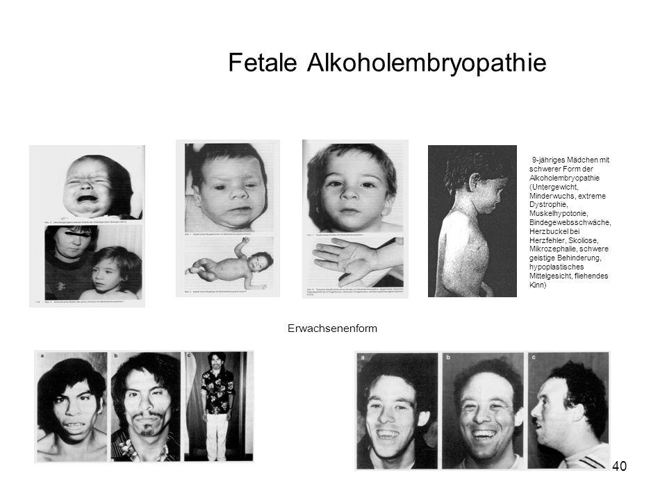 40 9-jähriges Mädchen mit schwerer Form der Alkoholembryopathie (Untergewicht, Minderwuchs, extreme Dystrophie, Muskelhypotonie, Bindegewebsschwäche, Herzbuckel bei Herzfehler, Skoliose, Mikrozephalie, schwere geistige Behinderung, hypoplastisches Mittelgesicht, fliehendes Kinn) Erwachsenenform Fetale Alkoholembryopathie