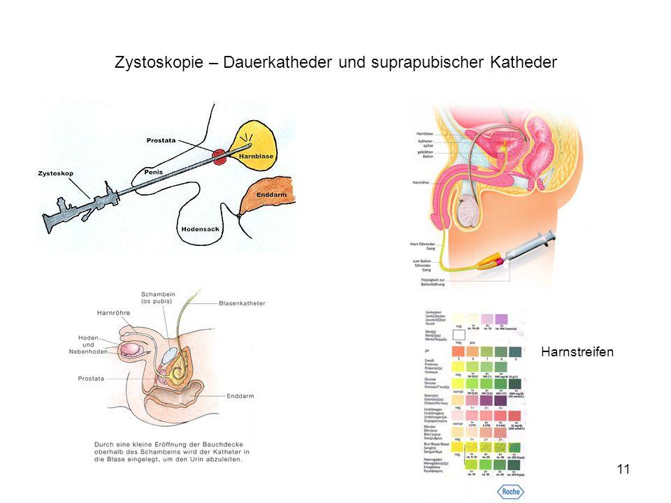11 Zystoskopie – Dauerkatheder und suprapubischer Katheder Harnstreifen