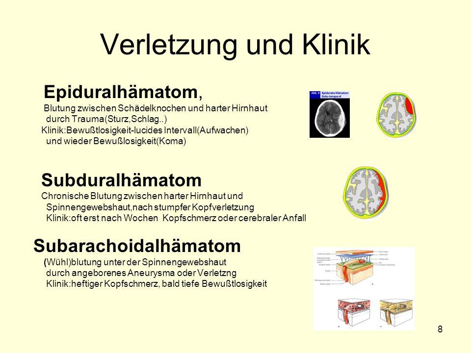 8 Verletzung und Klinik Epiduralhämatom, Blutung zwischen Schädelknochen und harter Hirnhaut durch Trauma(Sturz,Schlag..) Klinik:Bewußtlosigkeit-lucid