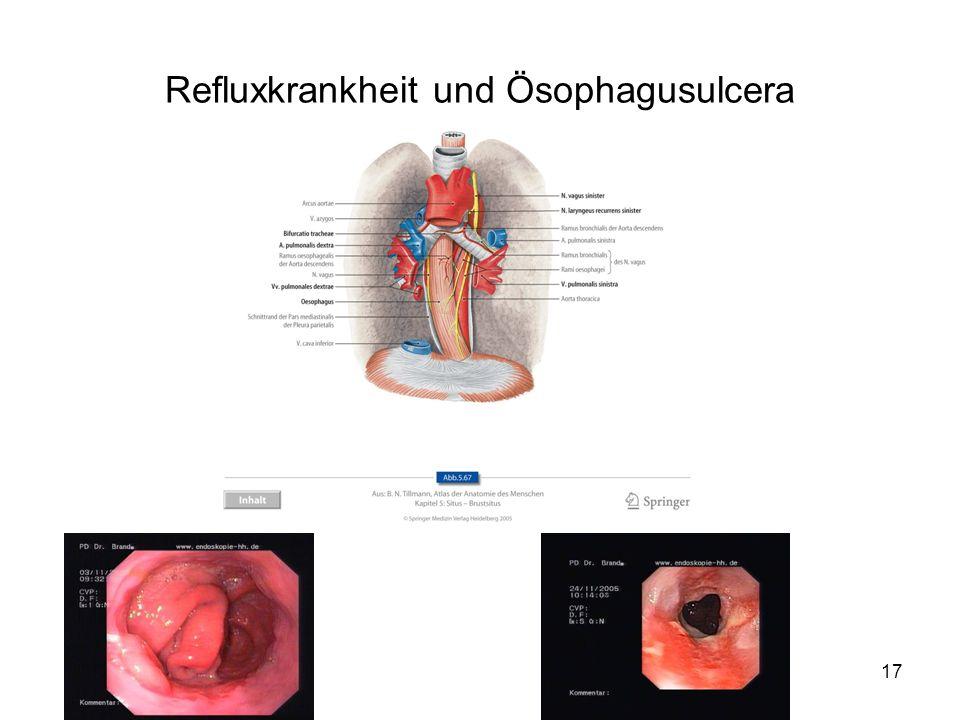 17 Refluxkrankheit und Ösophagusulcera
