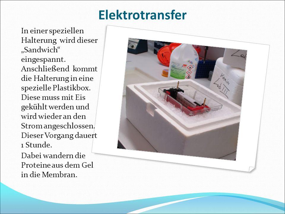 """Elektrotransfer In einer speziellen Halterung wird dieser """"Sandwich"""" eingespannt. Anschließend kommt die Halterung in eine spezielle Plastikbox. Diese"""