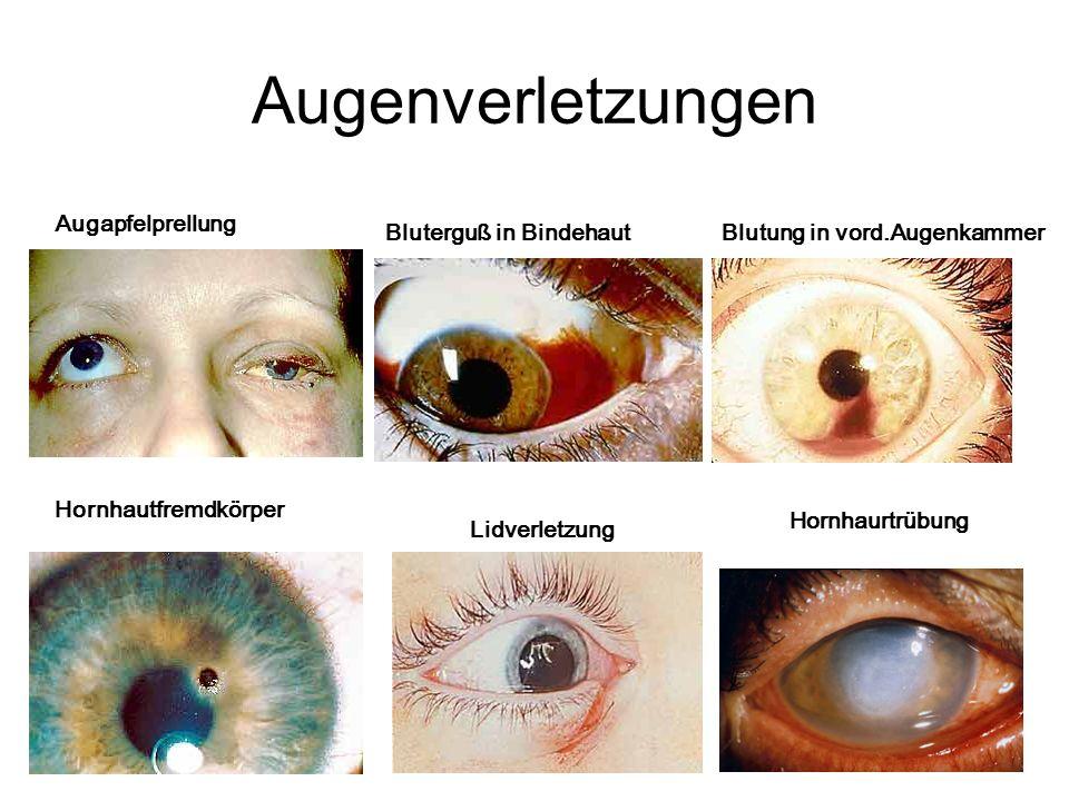 16 Augapfelprellung Bluterguß in Bindehaut Blutung in vord.Augenkammer Augenverletzungen Hornhautfremdkörper Lidverletzung Hornhaurtrübung