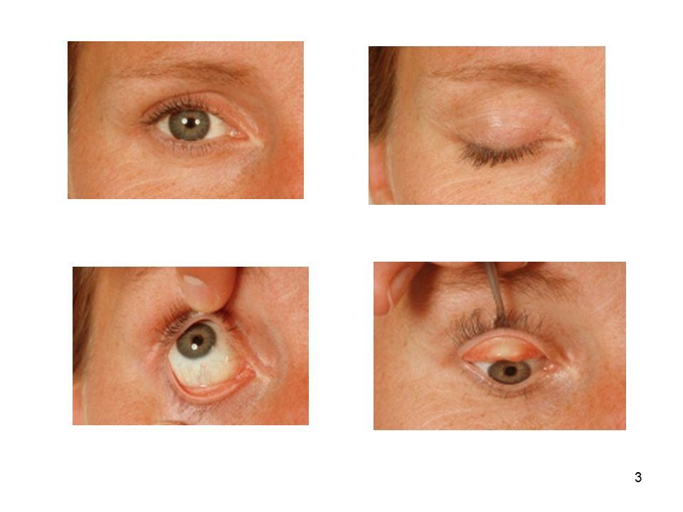 4 Augenhöhle