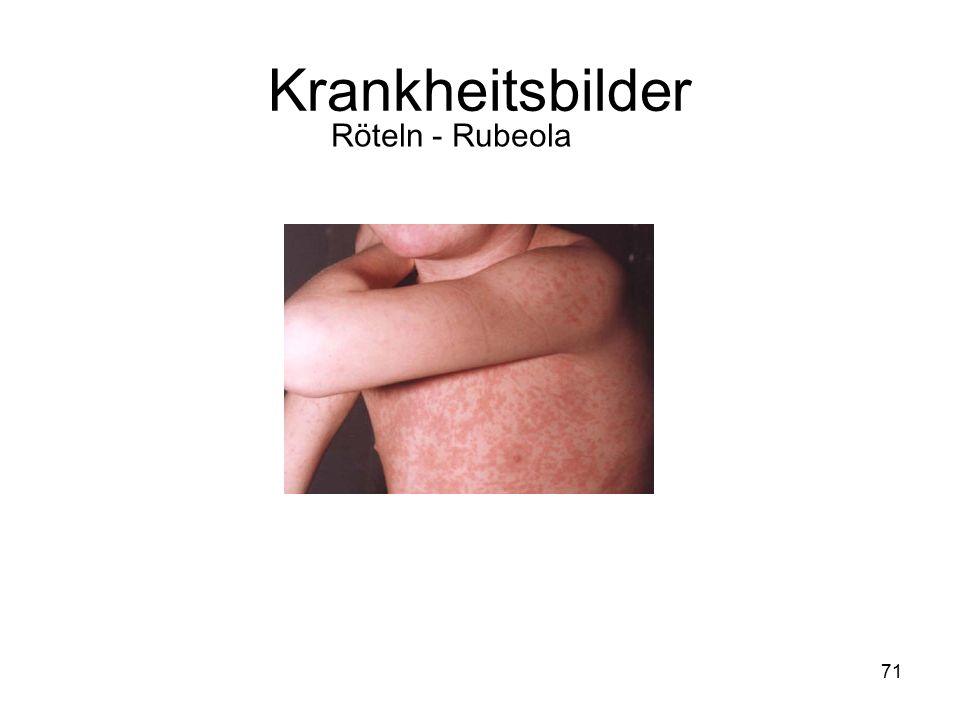 71 Röteln - Rubeola Krankheitsbilder