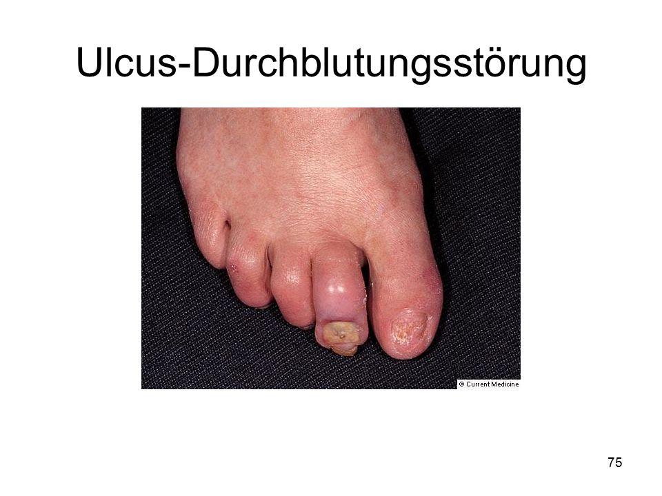 Ulcus-Durchblutungsstörung 75