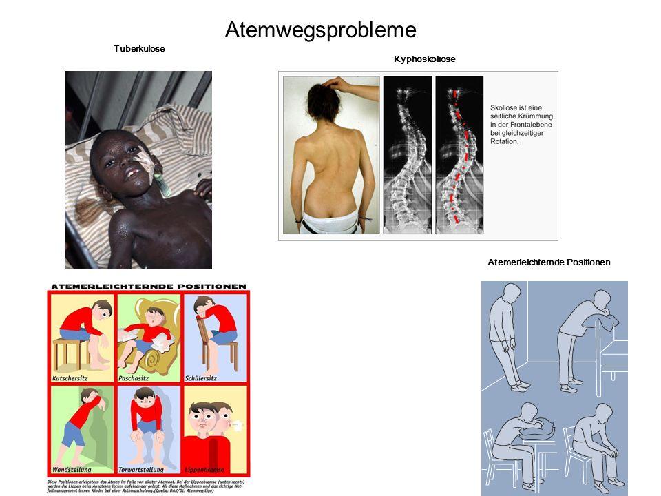 13 Tuberkulose Kyphoskoliose Atemerleichternde Positionen Atemwegsprobleme