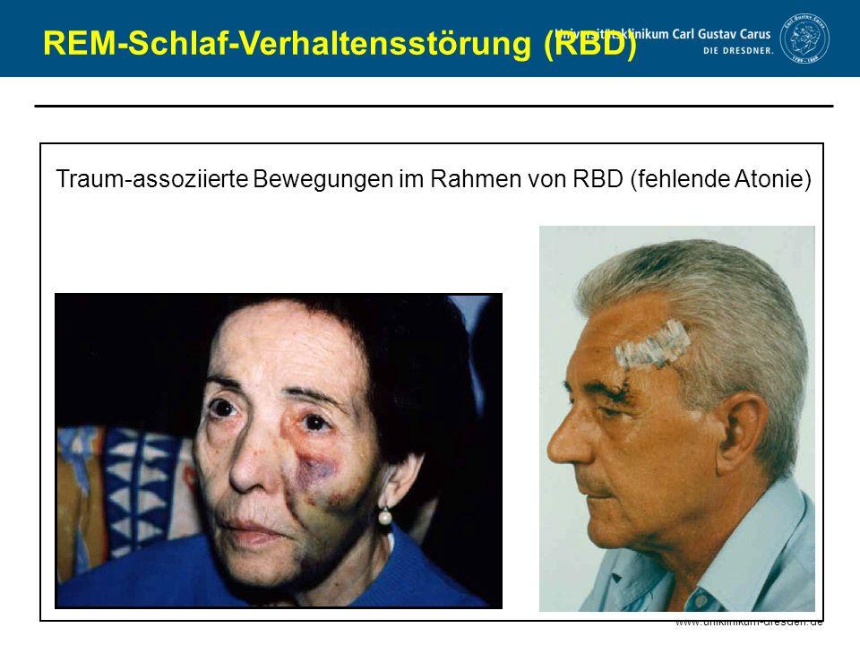www.uniklinikum-dresden.de REM-Schlaf-Verhaltensstörung (RBD) Traum-assoziierte Bewegungen im Rahmen von RBD (fehlende Atonie)