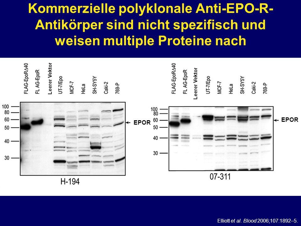 Kommerzielle polyklonale Anti-EPO-R- Antikörper sind nicht spezifisch und weisen multiple Proteine nach EPOR Elliott et al. Blood 2006;107:1892–5. Lee