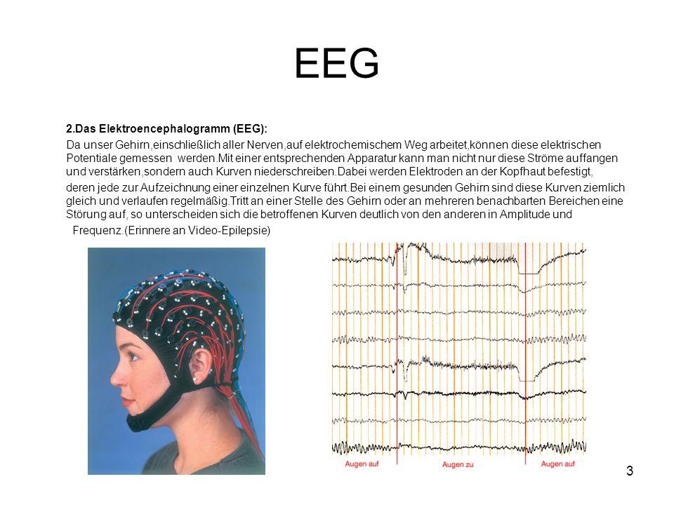 3 EEG 2.Das Elektroencephalogramm (EEG): Da unser Gehirn,einschließlich aller Nerven,auf elektrochemischem Weg arbeitet,können diese elektrischen Potentiale gemessen werden.Mit einer entsprechenden Apparatur kann man nicht nur diese Ströme auffangen und verstärken,sondern auch Kurven niederschreiben.Dabei werden Elektroden an der Kopfhaut befestigt, deren jede zur Aufzeichnung einer einzelnen Kurve führt.Bei einem gesunden Gehirn sind diese Kurven ziemlich gleich und verlaufen regelmäßig.Tritt an einer Stelle des Gehirn oder an mehreren benachbarten Bereichen eine Störung auf, so unterscheiden sich die betroffenen Kurven deutlich von den anderen in Amplitude und Frequenz.(Erinnere an Video-Epilepsie)