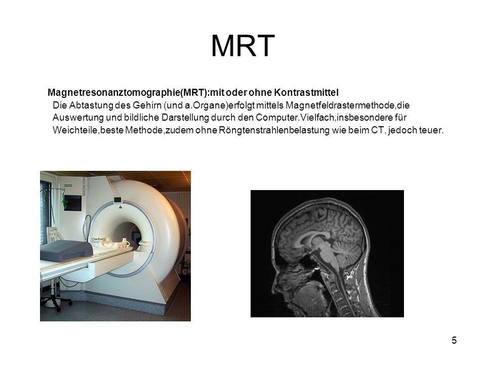 5 MRT Magnetresonanztomographie(MRT):mit oder ohne Kontrastmittel Die Abtastung des Gehirn (und a.Organe)erfolgt mittels Magnetfeldrastermethode,die Auswertung und bildliche Darstellung durch den Computer.Vielfach,insbesondere für Weichteile,beste Methode,zudem ohne Röngtenstrahlenbelastung wie beim CT, jedoch teuer.