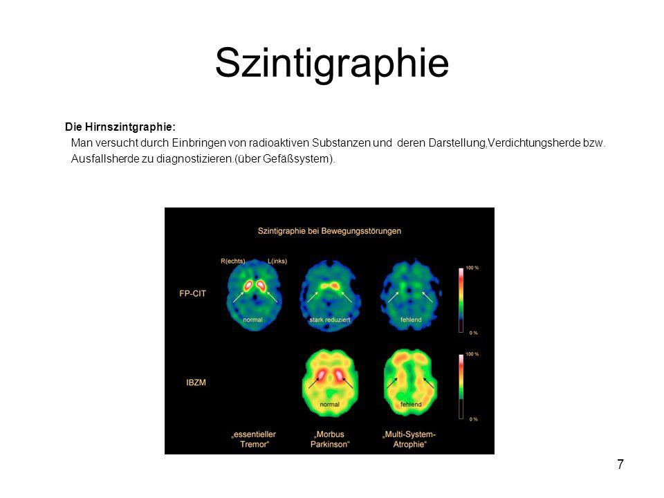 7 Szintigraphie Die Hirnszintgraphie: Man versucht durch Einbringen von radioaktiven Substanzen und deren Darstellung,Verdichtungsherde bzw.