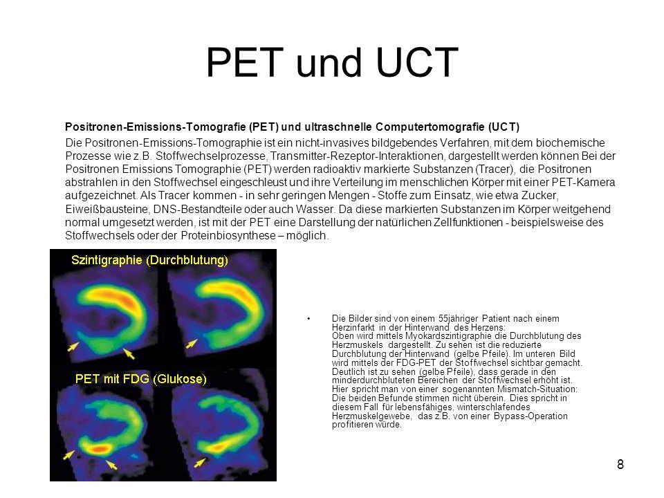 8 PET und UCT Positronen-Emissions-Tomografie (PET) und ultraschnelle Computertomografie (UCT) Die Positronen-Emissions-Tomographie ist ein nicht-invasives bildgebendes Verfahren, mit dem biochemische Prozesse wie z.B.