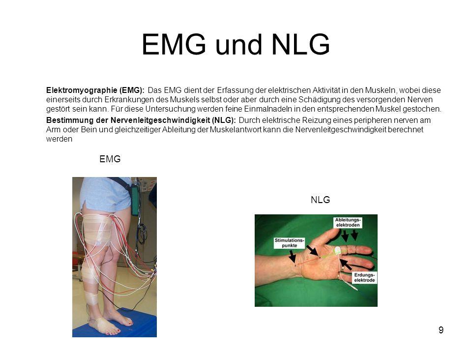 9 EMG und NLG Elektromyographie (EMG): Das EMG dient der Erfassung der elektrischen Aktivität in den Muskeln, wobei diese einerseits durch Erkrankungen des Muskels selbst oder aber durch eine Schädigung des versorgenden Nerven gestört sein kann.