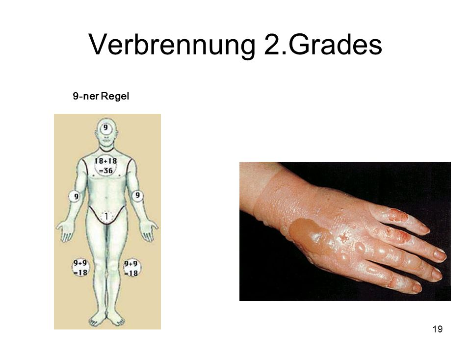 19 Verbrennung 2.Grades 9-ner Regel
