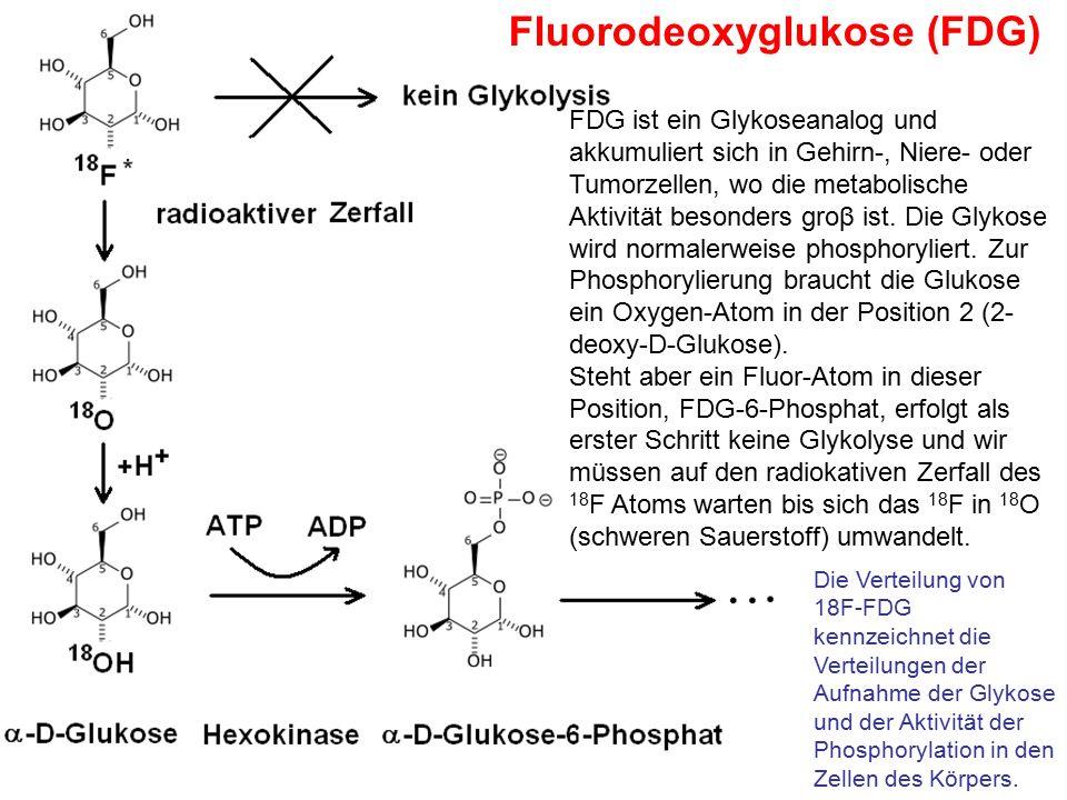 Fluorodeoxyglukose (FDG) FDG ist ein Glykoseanalog und akkumuliert sich in Gehirn-, Niere- oder Tumorzellen, wo die metabolische Aktivität besonders g