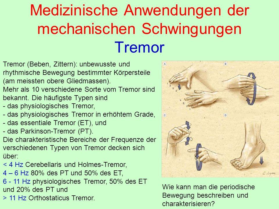 Medizinische Anwendungen der mechanischen Schwingungen Tremor Tremor (Beben, Zittern): unbewusste und rhythmische Bewegung bestimmter Körpersteile (am