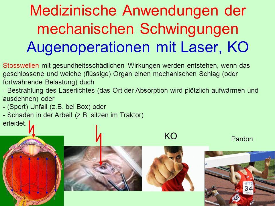 Medizinische Anwendungen der mechanischen Schwingungen Augenoperationen mit Laser, KO Stosswellen mit gesundheitsschädlichen Wirkungen werden entstehe