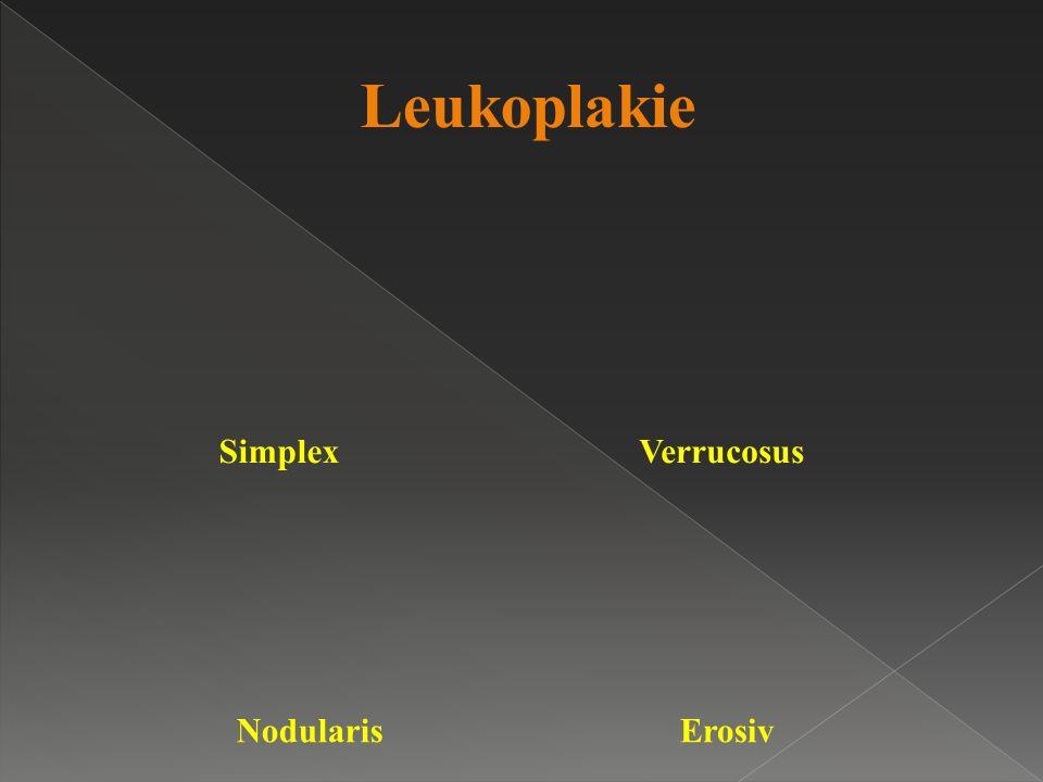 Leukoplakie SimplexVerrucosus NodularisErosiv