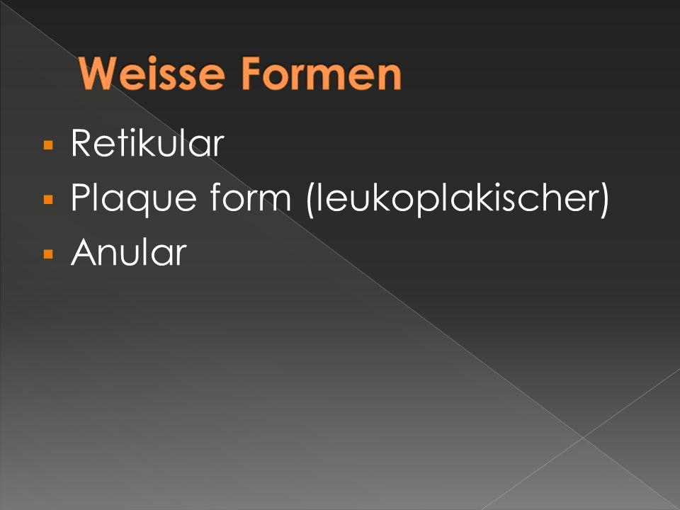  Retikular  Plaque form (leukoplakischer)  Anular