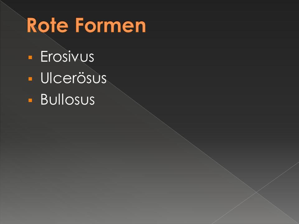  Erosivus  Ulcerösus  Bullosus