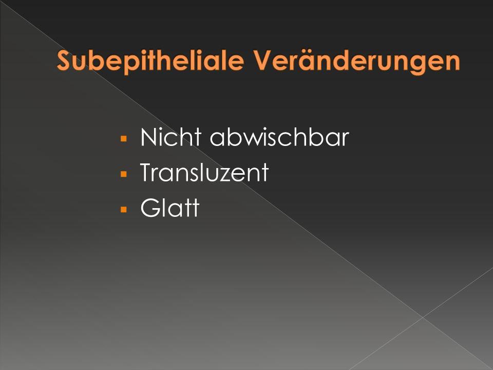  Nicht abwischbar  Transluzent  Glatt