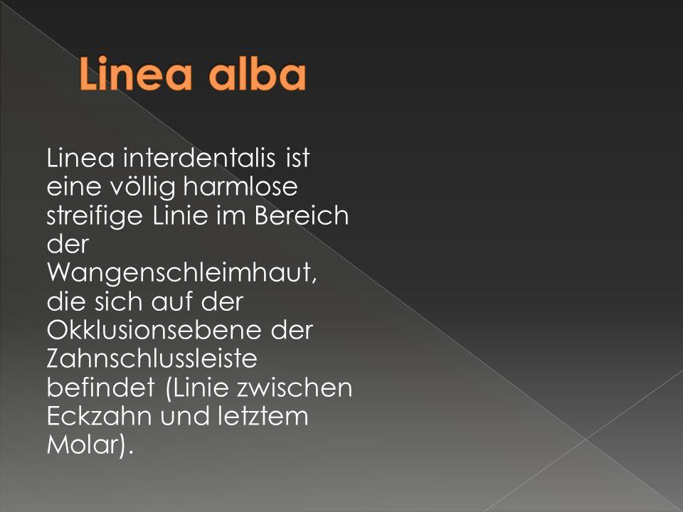 Linea interdentalis ist eine völlig harmlose streifige Linie im Bereich der Wangenschleimhaut, die sich auf der Okklusionsebene der Zahnschlussleiste