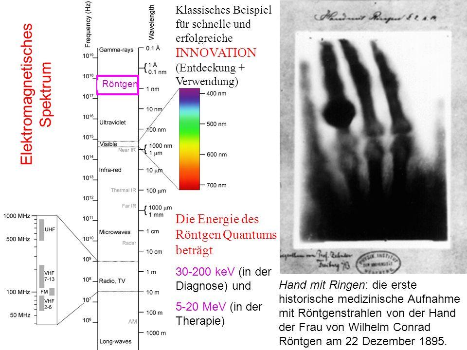 Hand mit Ringen: die erste historische medizinische Aufnahme mit Röntgenstrahlen von der Hand der Frau von Wilhelm Conrad Röntgen am 22 Dezember 1895.