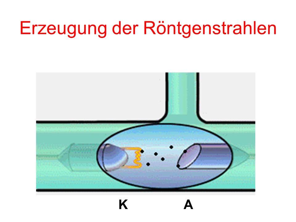 Erzeugung der Röntgenstrahlen KA