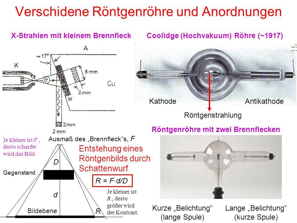 """Verschidene Röntgenröhre und Anordnungen Coolidge (Hochvakuum) Röhre (~1917)X-Strahlen mit kleinem Brennfleck Gegenstand Ausmaß des """"Brennfleck s, F R d D R = F·d/D Je kleiner ist R, desto größer wird der Kontrast."""