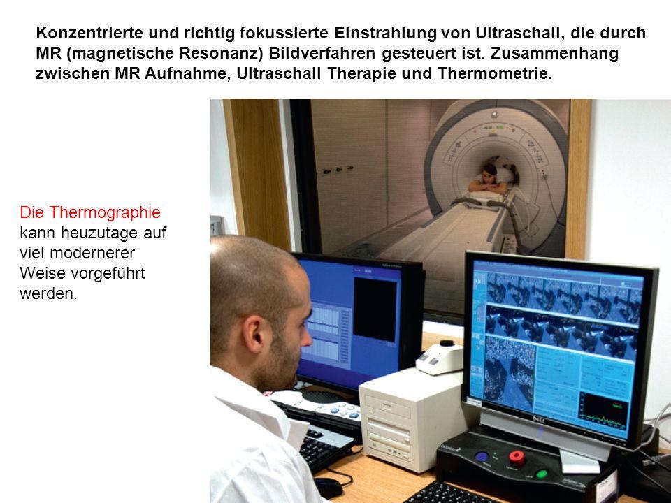 Konzentrierte und richtig fokussierte Einstrahlung von Ultraschall, die durch MR (magnetische Resonanz) Bildverfahren gesteuert ist. Zusammenhang zwis