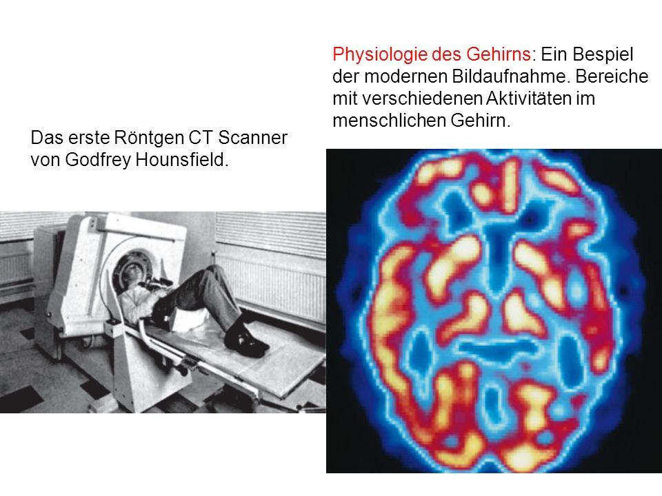 Physiologie des Gehirns: Ein Bespiel der modernen Bildaufnahme. Bereiche mit verschiedenen Aktivitäten im menschlichen Gehirn. Das erste Röntgen CT Sc