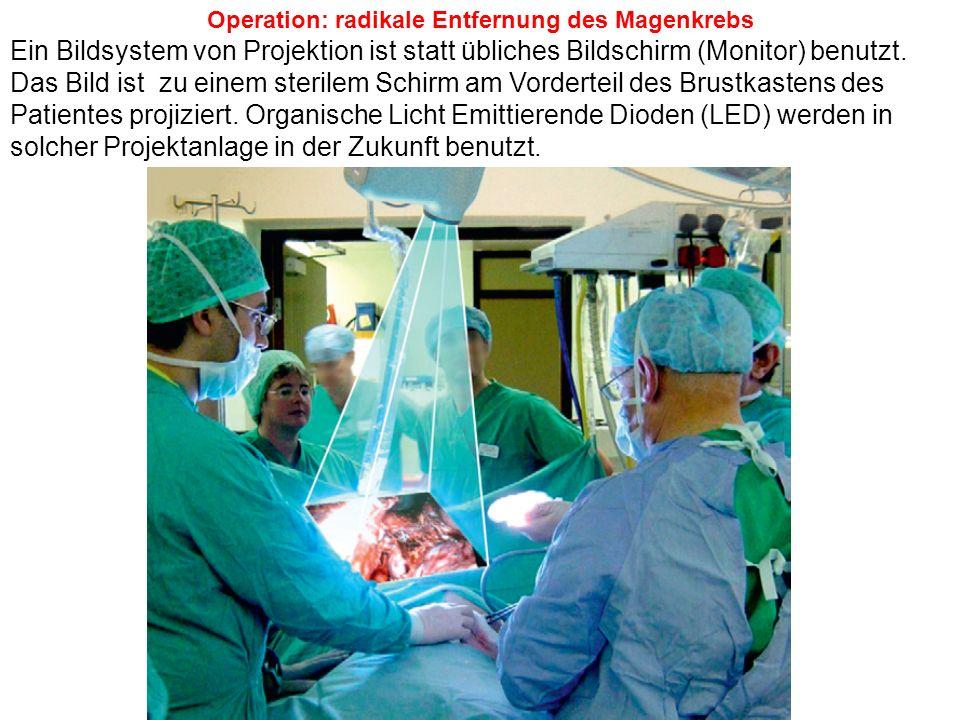 Operation: radikale Entfernung des Magenkrebs Ein Bildsystem von Projektion ist statt übliches Bildschirm (Monitor) benutzt. Das Bild ist zu einem ste