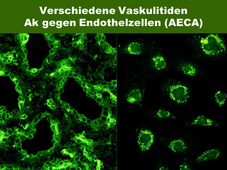 EUROIMMUN Bild Huvec Bild Skelettmuskulatur Verschiedene Vaskulitiden Ak gegen Endothelzellen (AECA)