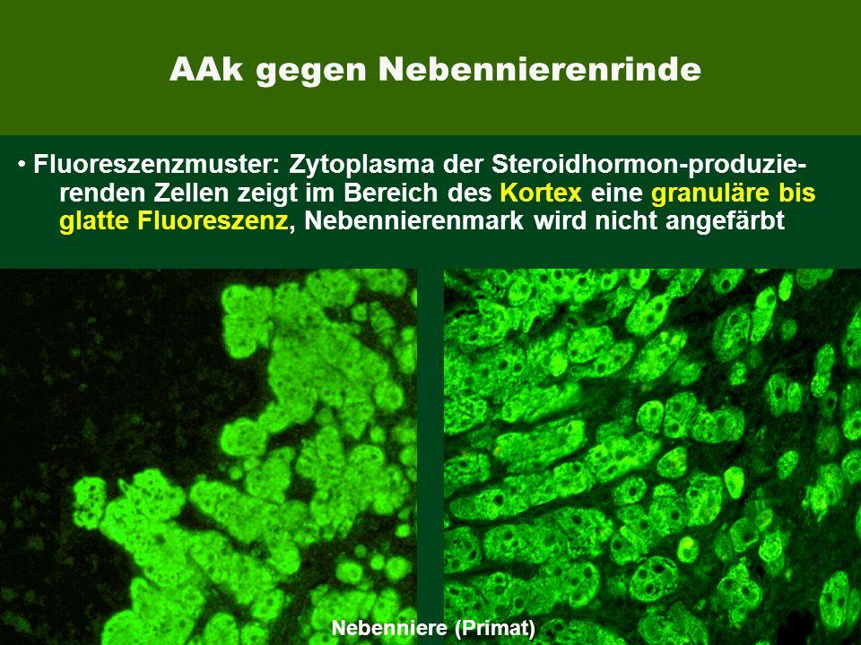 EUROIMMUN AAk gegen Nebennierenrinde Fluoreszenzmuster: Zytoplasma der Steroidhormon-produzie- renden Zellen zeigt im Bereich des Kortex eine granulär