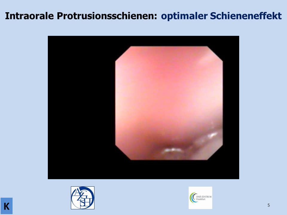 5 Intraorale Protrusionsschienen: optimaler Schieneneffekt K