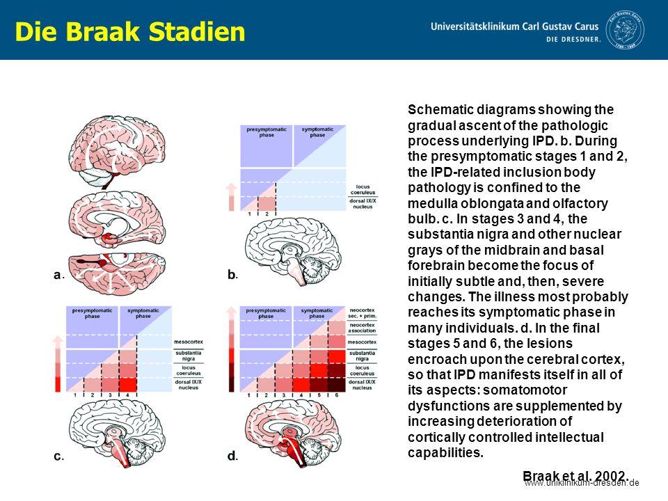 www.uniklinikum-dresden.de 48 16 Trenkwalder C.et al.