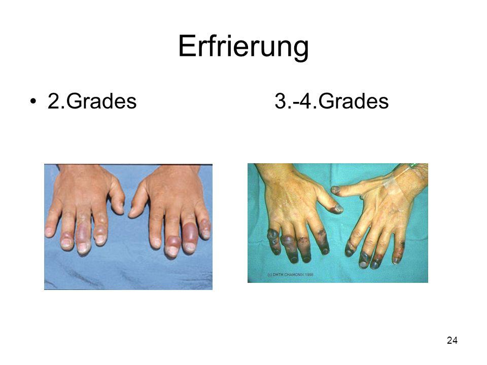 24 Erfrierung 2.Grades 3.-4.Grades