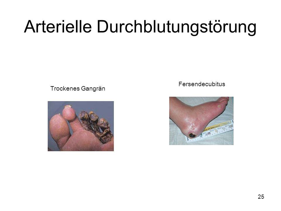 25 Arterielle Durchblutungstörung Trockenes Gangrän Fersendecubitus