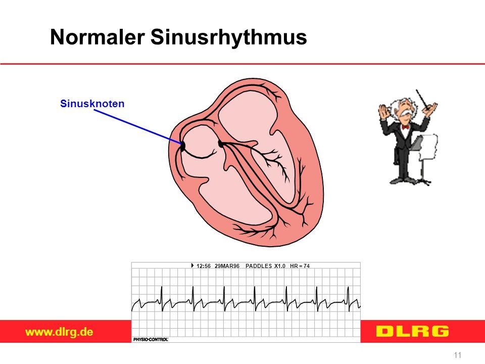 www.dlrg.de 11 Normaler Sinusrhythmus 12:56 29MAR96 PADDLES X1.0 HR = 74 Sinusknoten