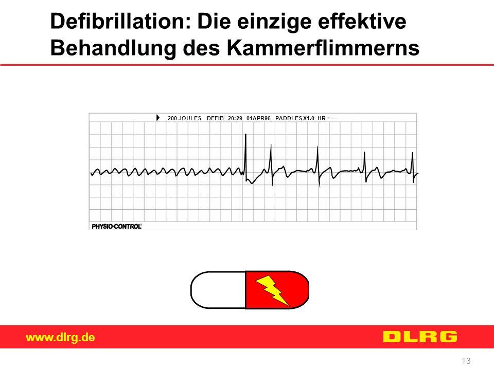 www.dlrg.de 13 Defibrillation: Die einzige effektive Behandlung des Kammerflimmerns 200 JOULES DEFIB 20:29 01APR96 PADDLES X1.0 HR = ---