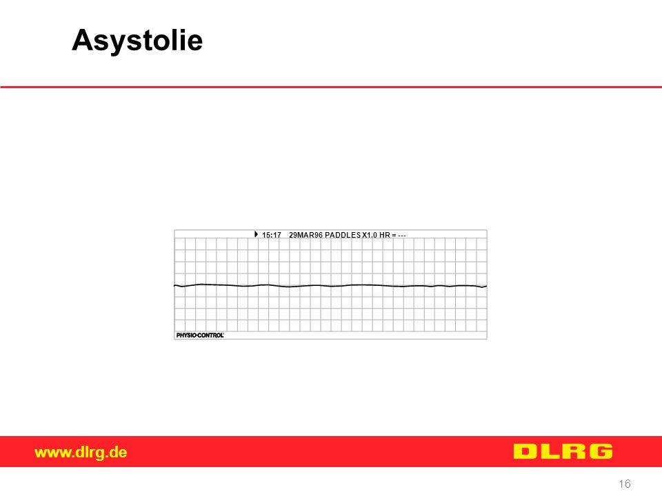 www.dlrg.de 16 Asystolie 15:17 29MAR96 PADDLES X1.0 HR = ---