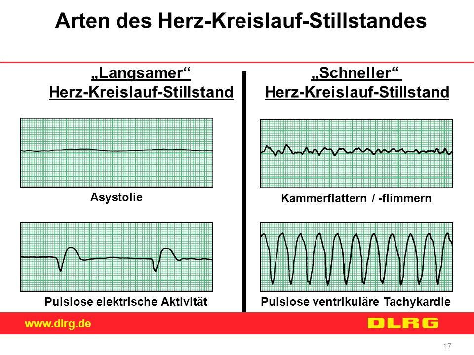 """www.dlrg.de 17 Arten des Herz-Kreislauf-Stillstandes """"Langsamer"""" Herz-Kreislauf-Stillstand """"Schneller"""" Herz-Kreislauf-Stillstand Asystolie Pulslose el"""