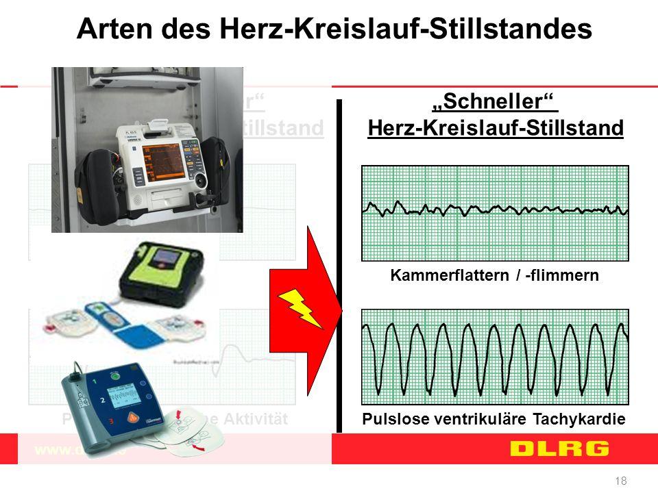 """www.dlrg.de 18 Arten des Herz-Kreislauf-Stillstandes """"Langsamer"""" Herz-Kreislauf-Stillstand """"Schneller"""" Herz-Kreislauf-Stillstand Asystolie Pulslose el"""