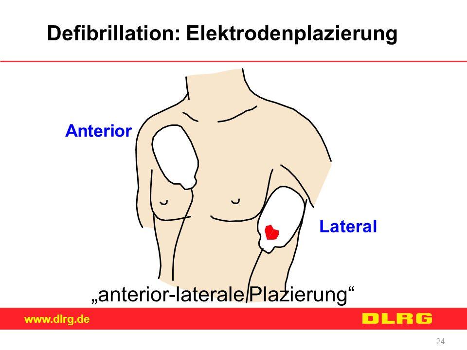 """www.dlrg.de 24 Defibrillation: Elektrodenplazierung """"anterior-laterale Plazierung"""" Lateral Anterior"""
