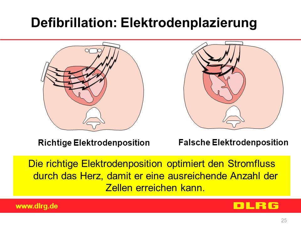 www.dlrg.de 25 Defibrillation: Elektrodenplazierung Die richtige Elektrodenposition optimiert den Stromfluss durch das Herz, damit er eine ausreichend