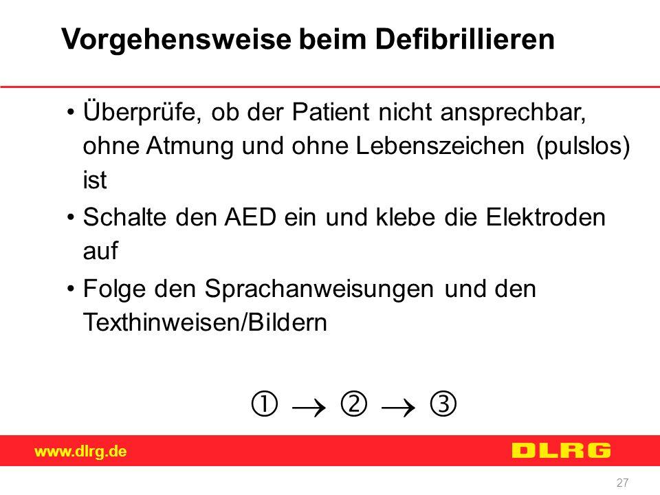 www.dlrg.de 27 Vorgehensweise beim Defibrillieren Überprüfe, ob der Patient nicht ansprechbar, ohne Atmung und ohne Lebenszeichen (pulslos) ist Schalt