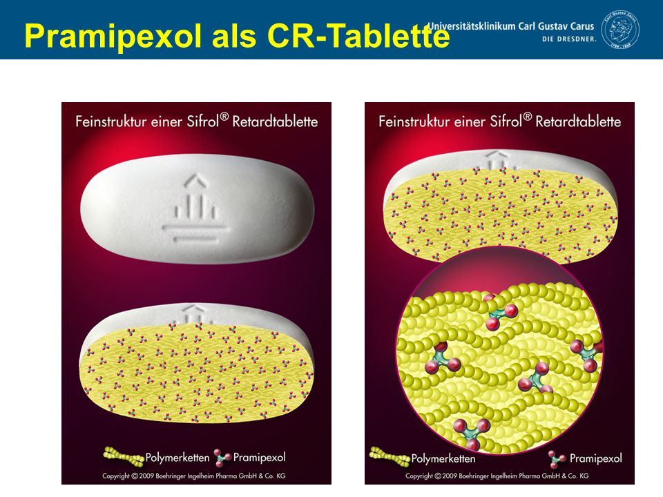 www.uniklinikum-dresden.de Pramipexol als CR-Tablette
