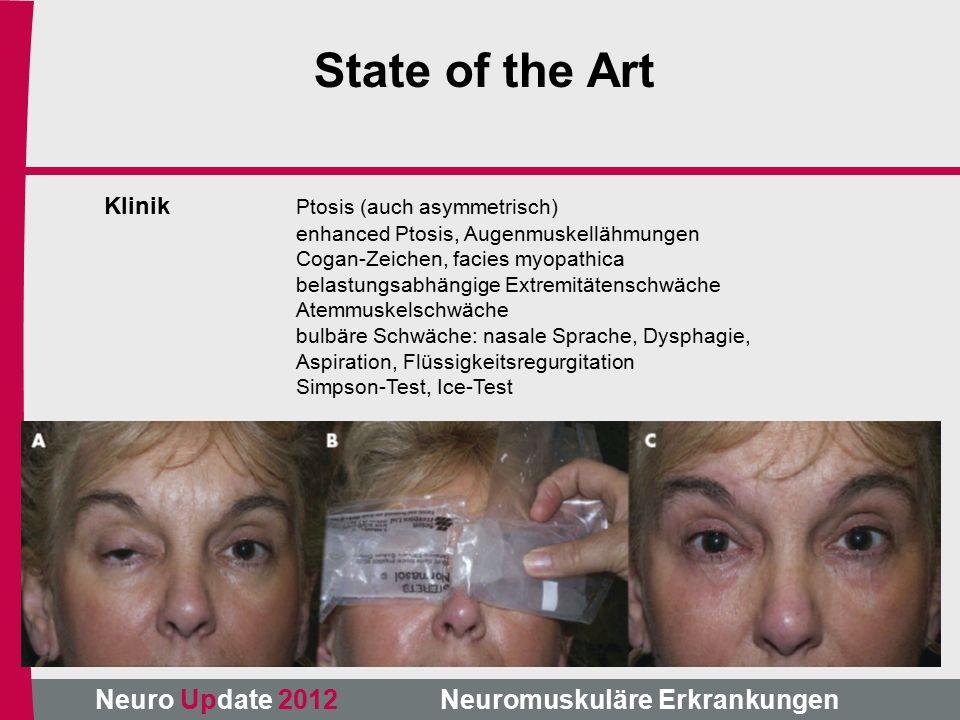 Neuro Update 2012 Neuromuskuläre Erkrankungen State of the Art Klinik Ptosis (auch asymmetrisch) enhanced Ptosis, Augenmuskellähmungen Cogan-Zeichen, facies myopathica belastungsabhängige Extremitätenschwäche Atemmuskelschwäche bulbäre Schwäche: nasale Sprache, Dysphagie, Aspiration, Flüssigkeitsregurgitation Simpson-Test, Ice-Test