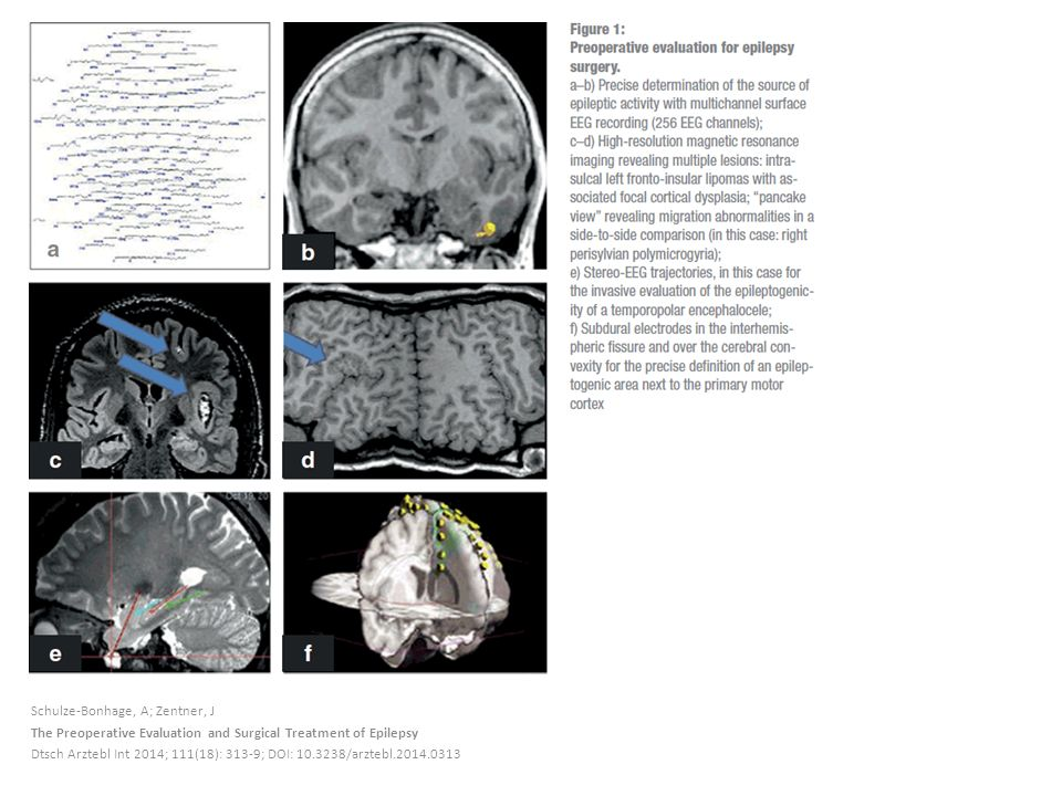 Schulze-Bonhage, A; Zentner, J The Preoperative Evaluation and Surgical Treatment of Epilepsy Dtsch Arztebl Int 2014; 111(18): 313-9; DOI: 10.3238/arztebl.2014.0313